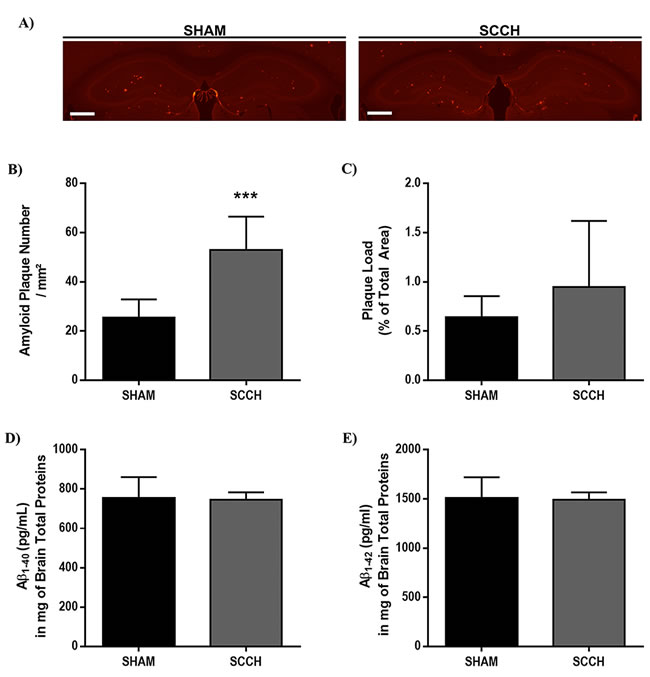 Number of Aβ plaques increases following SCCH without affecting soluble Aβ levels.
