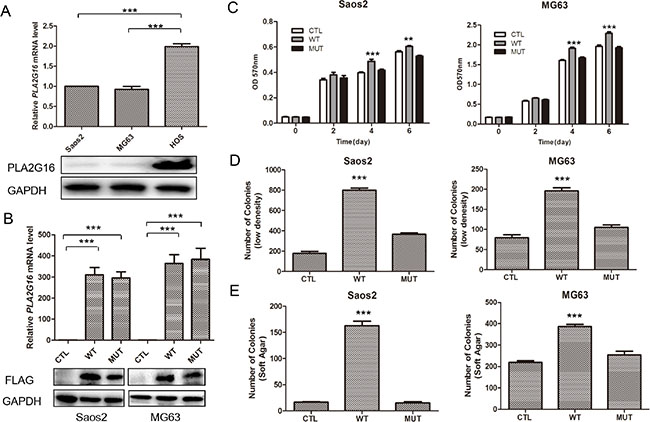 Overexpression of PLA2G16 increases osteosarcoma cell proliferation, clonogenicity and anchorage-independent colony formation.