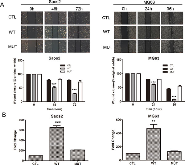 Overexpression of PLA2G16 enhances osteosarcoma cell migration and invasion.