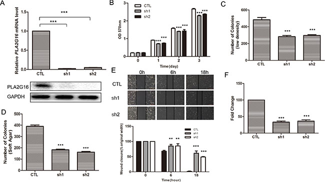 Knockdown of PLA2G16 decreases osteosarcoma cell proliferation, clonogenicity, anchorage-independent colony formation, migration and invasion.