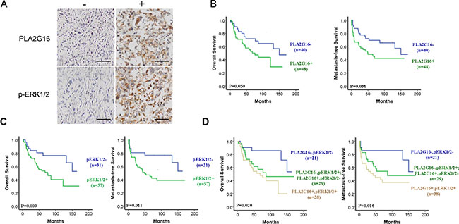 The phosphorylation of ERK1/2 and PLA2G16 overexpression are associated with poor prognosis and metastasis in osteosarcoma patients.