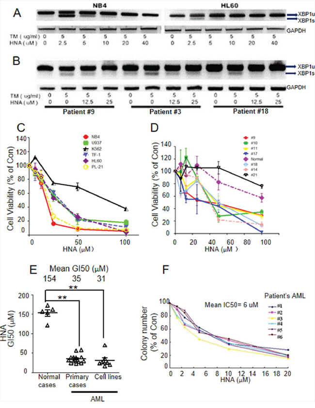 HNA inhibits XBP1s and causes cytotoxicity of AML cells.