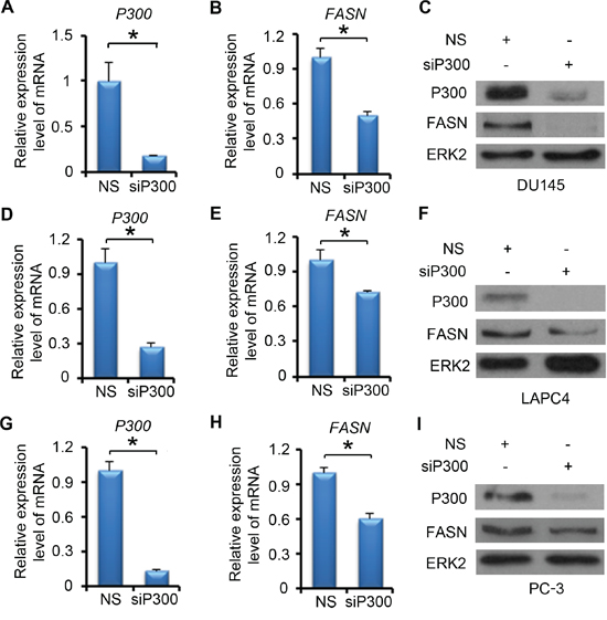 P300 regulates the expression of FASN mRNA and protein.