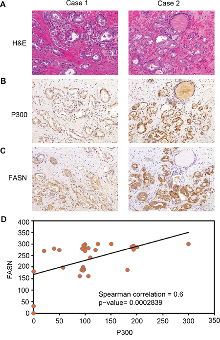 Expression of P300 positively correlates with FASN protein levels in human PCa specimens.
