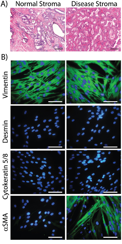 Characterising cultured normal or diseased stromal cells.