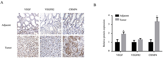 Immunohistochemical analysis of the expression levels of VEGF, VEGFR2 and CRMP4 in tumor sections from gastric cancer patients.