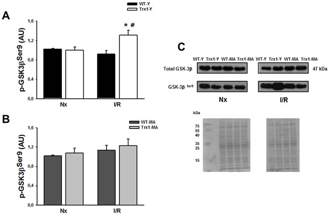 pGSK-3β Ser 9 protein expression in the cytosolic fraction of normoxic (Nx) and ischemia/reperfusion protocols (I/R) in young (Panel A) and middle-aged (Panel B) mice.