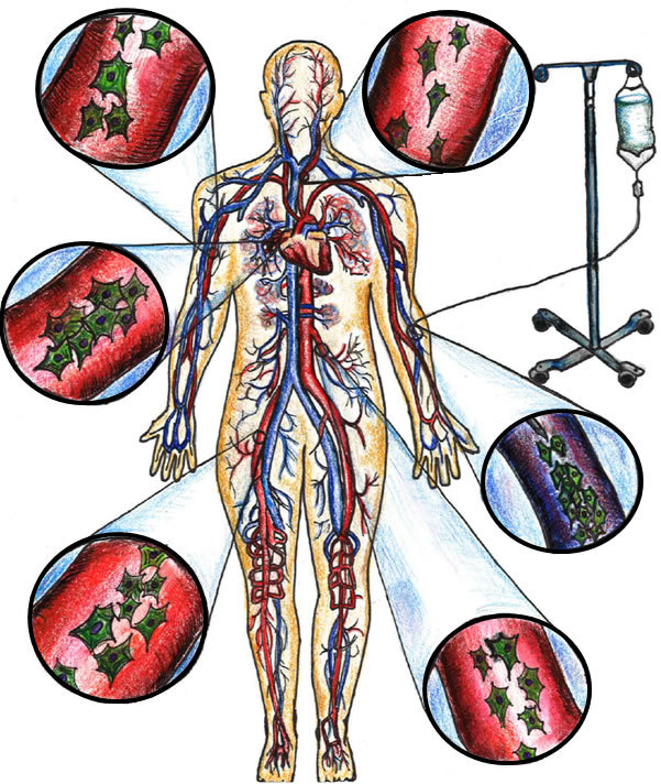 Peripheral intravenous administration of allogeneic MSCs via systemic circulation.