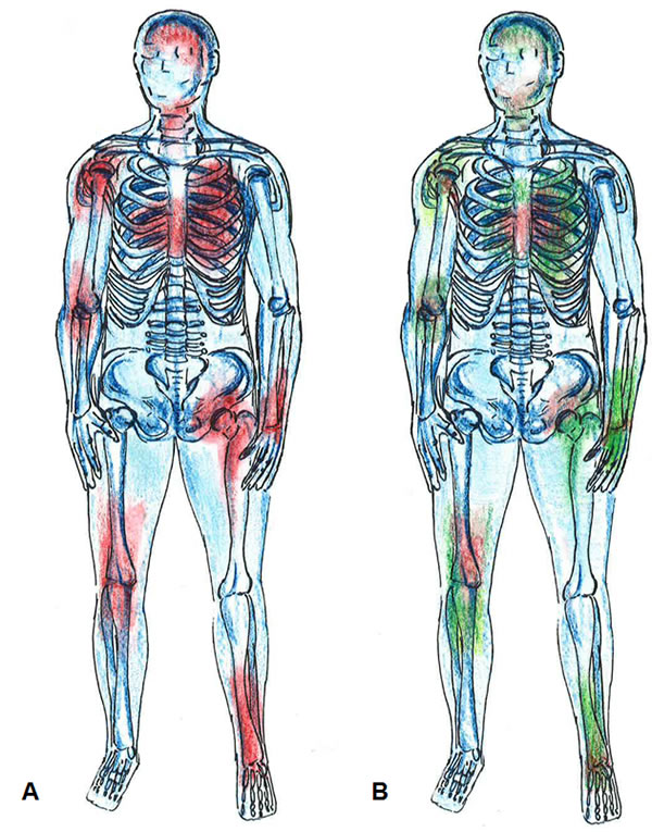 Systemic inflammation.