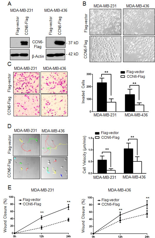 CCN6 overexpression induces phenotypic changes towards mesenchymal to epithelial transition (MET) and decreases breast cancer cell invasion and motility.