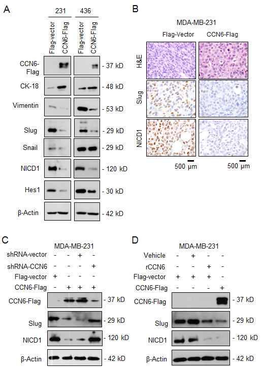 CCN6 regulates the expression of Slug and Notch1 signaling pathway.