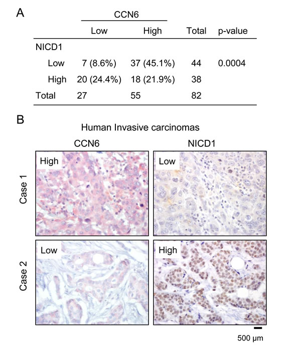 CCN6 expression is inversely associated with NICD1 in human breast cancer tissues.