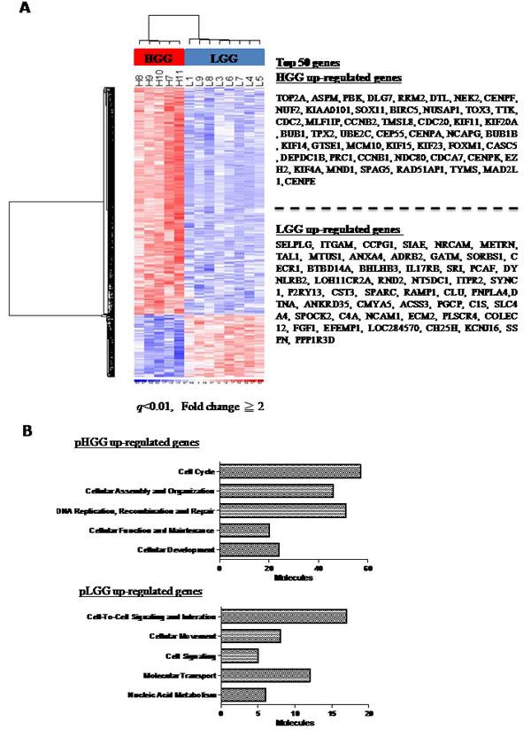 Gene expression microarray analysis of pediatric gliomas.