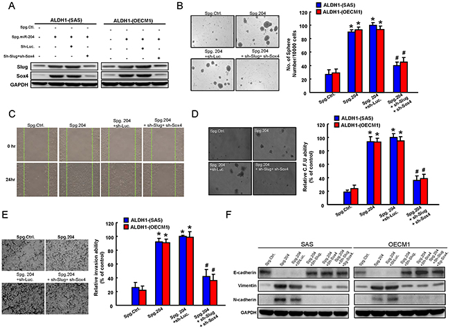 Involvement of Slug and Sox4 in miR-204-regulated cancer stemness and EMT.