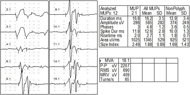 EMG of one case with right RIBP.