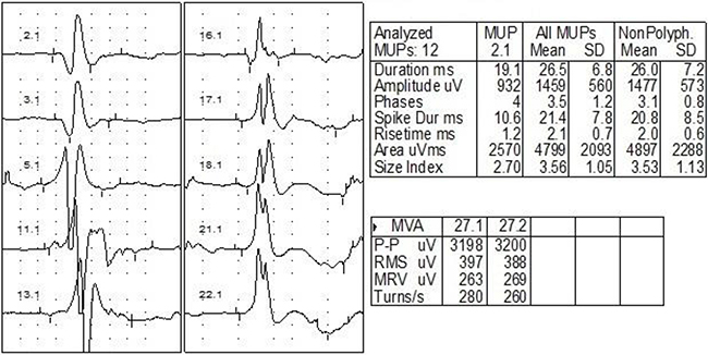 EMG of one case with bilateral RIBP.