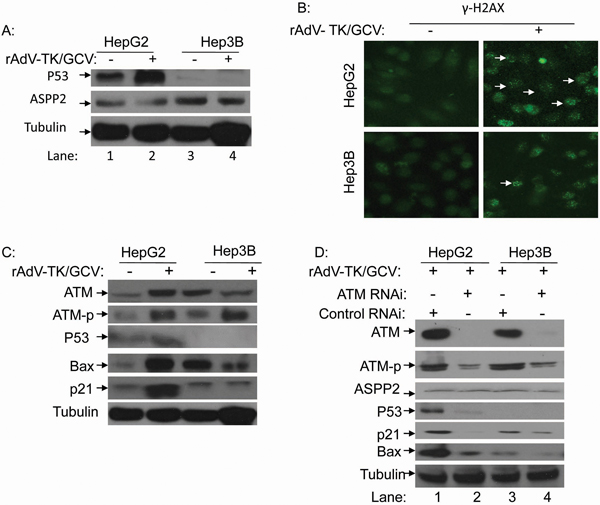 rAdV-TK/GCV treatment can induce endogenous p53 expression via phosphorylation of ATM and γ-H2AX.