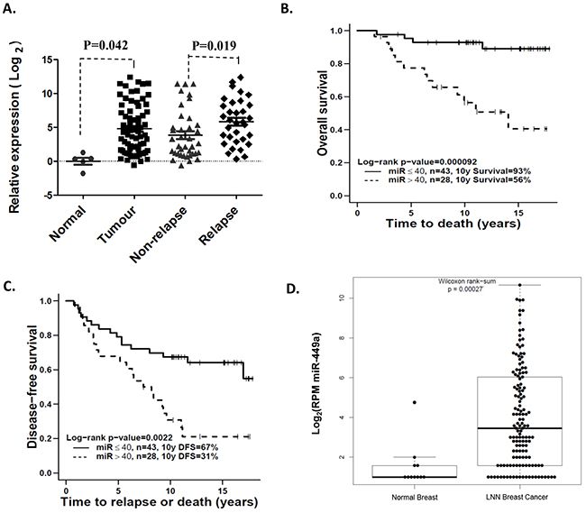 Overexpression of miR-449a was associated with higher risk of recurrence in lymph node-negative (LNN) breast cancer patients.