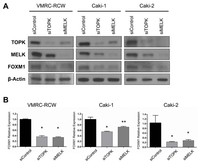 Both TOPK and MELK regulate expression of FOXM1.