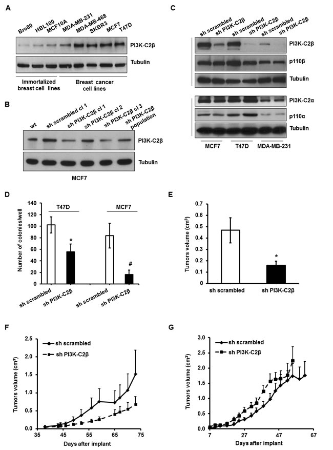 PI3K-C2β is overexpressed in human breast cancer cell lines and plays a critical role in breast cancer cell tumorigenesis.