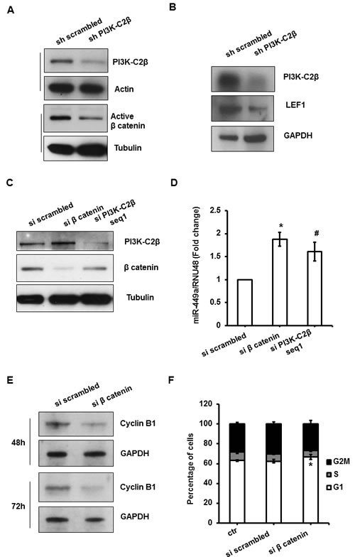 PI3K-C2β regulates miR449a/cyclinB1 through modulation of LEF1/β catenin pathway in MDA-MB-231 cells.