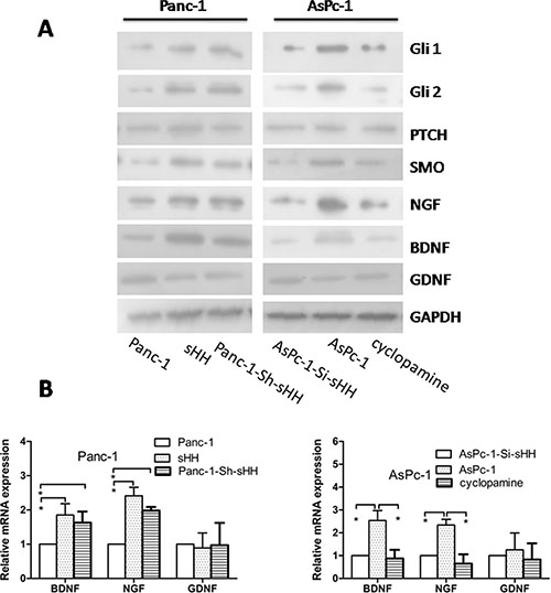 PC cells activate the sHH signaling pathway and increase expression of NGF and BDNF in PSCs.