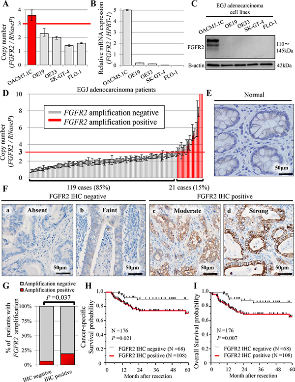 Profiles of FGFR2 status in five human EGJ adenocarcinoma cell lines (A–C), and in patients with EGJ adenocarcinoma (N = 176) (D–I).