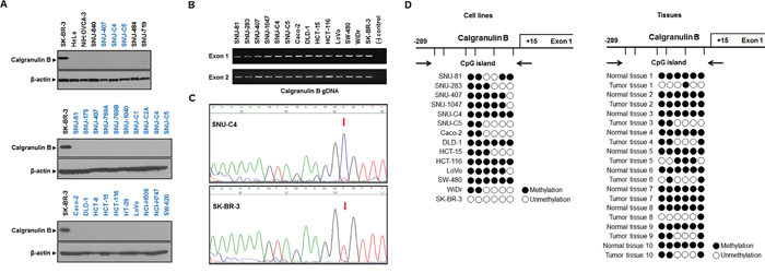 Calgranulin B expression and promoter methylation status in colon cancer cell lines.