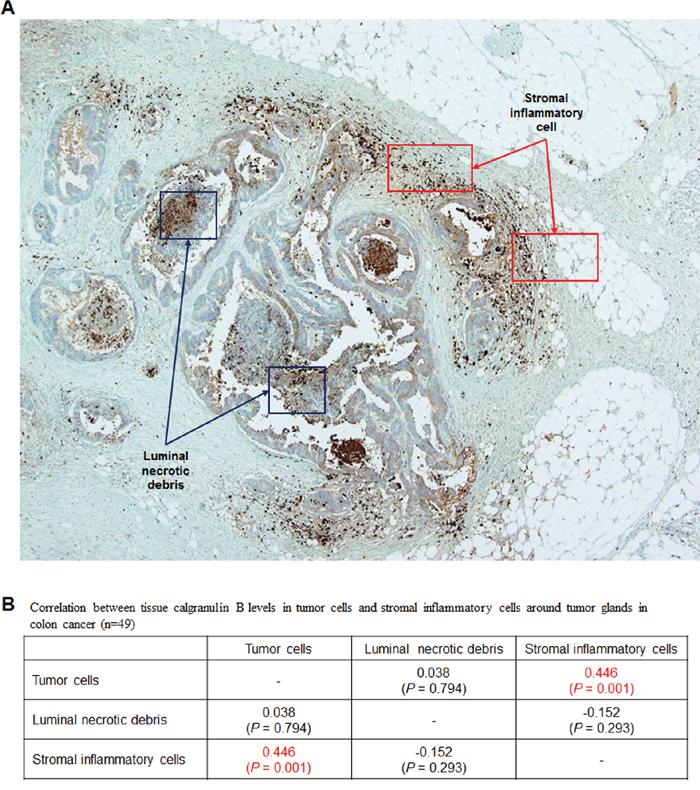 Evaluation of calgranulin B in colon cancer patient tumor tissues.
