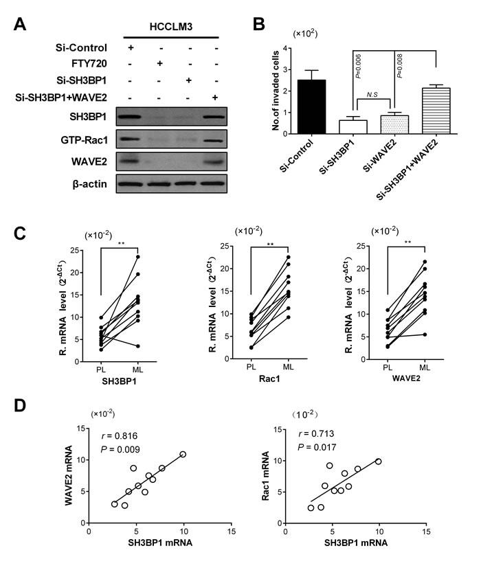 SH3BP1 facilitated HCC invasion and metastasis