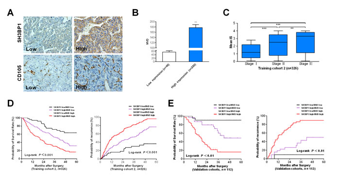 Combination of elevated SH3BP1 expression and MVD count is a powerful simplified predictor model in poor clinical outcome in HCCs.