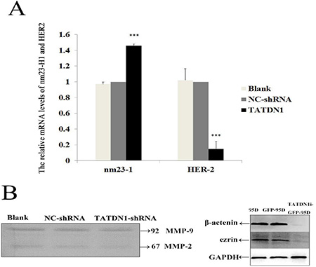 Effect of TATDN1 knockdown on the expression HER2, MMP2/9, β-catenin and ezrin in 95D cells.