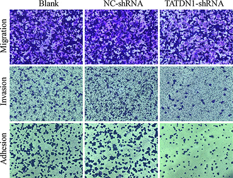 Effect of TATDN1 knockdown on cell proliferation, adhesion, invasion and migration.