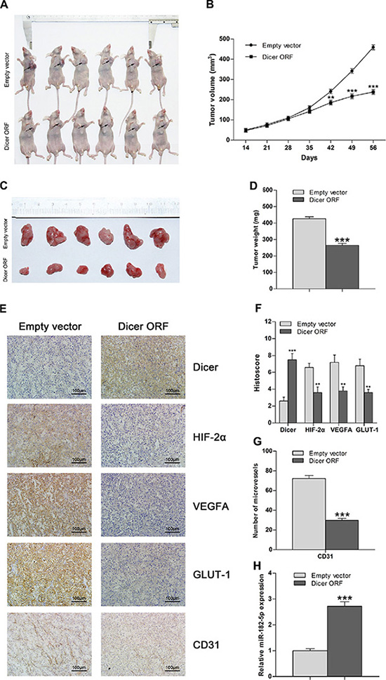 Overexpression of Dicer attenuates tumor growth in VHL-deficient ccRCC in vivo.