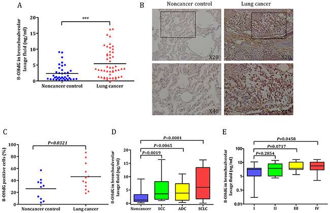 Oxidative DNA damage response in lung cancer patients and noncancer controls.