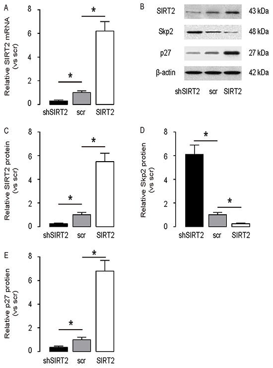 SIRT2 inhibits Skp2 in NSCLC cells.