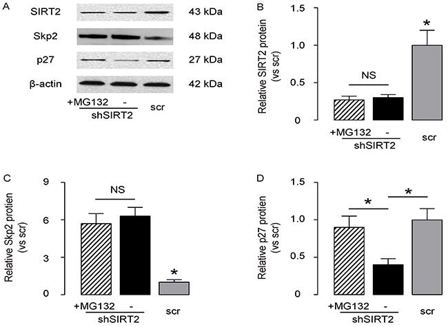 SIRT2 regulates p27 levels through Skp2-mediated p27 degradation.