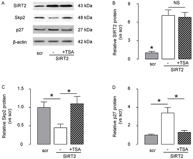 SIRT2 decreases Skp2 levels through induction of Skp2 deacetylation.