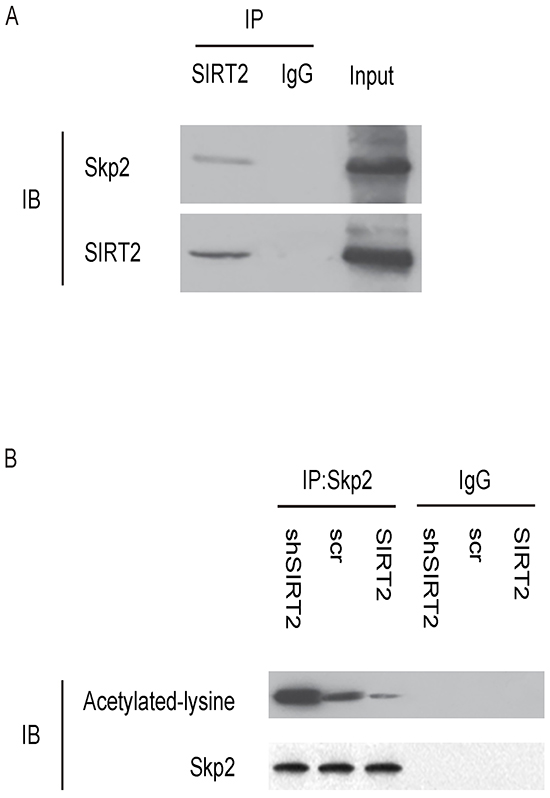 SIRT2 and Skp2 are associated in NSCLC cells.