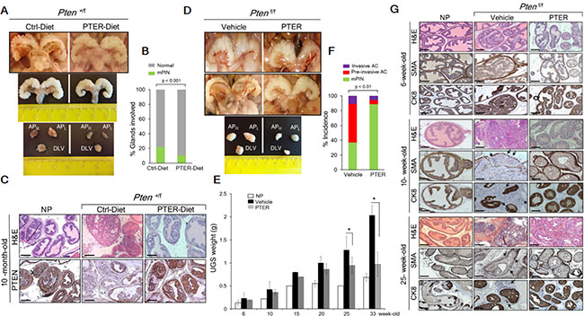 Pterostilbene reduces PIN formation in Pten+/f and blocks progression to adenocarcinoma in Ptenf/f mice.