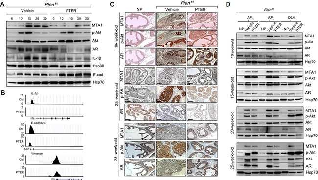 Inhibition of MTA1 and its associated signaling by pterostilbene (PTER) in Ptenf/f mice.