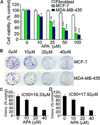 Suppressive effect of APA on cell growth of breast cancer cells in vitro.