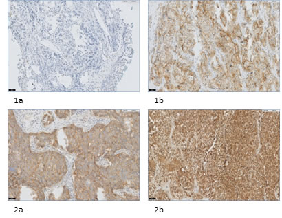 FRα expression in NSCLC and corresponding distant metastases.