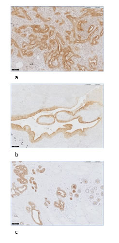 Examples of FRα staining in normal lung and breast tissue.