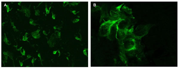 Melatonin expression evaluated by immunofluorescence confocal microscopy (400x) in the pineal gland (A) and thymus (B) of elderly people.