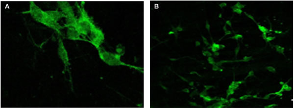 Chromogranin A expression evaluated by immunofluorescence confocal microscopy (400x) in the pineal gland (A) and thymus (B) of elderly people.