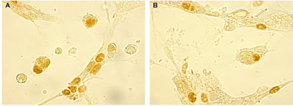 """CGRP expression evaluated by immunocytochemistry (200 x) in """"young"""" pinealocytes (A) and thymocytes (B) culture."""