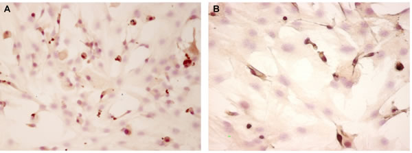 """pCREB expression evaluated by immunocytochemistry (200 x) in """"young"""" pinealocytes (A) and thymocytes (B) culture."""