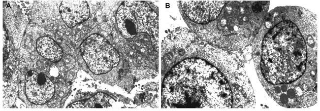 The ultrastructure of pinealocytes and thymic epithelial cells of elderly people evaluated by electron microscopy (1000х) in ultra-thin slices contrasted with uranyl acetate and lead citrate.
