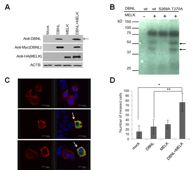 MELK phosphorylated Ser269 on DBNL and induced the cellular invasiveness.